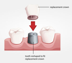 What Tooth Crowns Can Do For Your Teeth